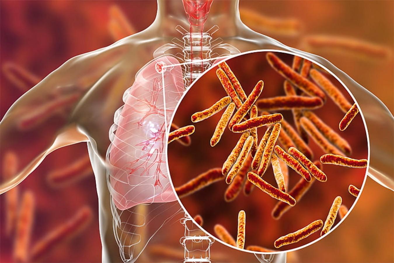 Возбудитель туберкулёза - палочка Коха