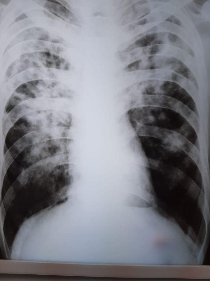 Лёгкие, пораженные туберкулёзом