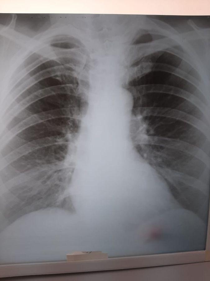 Лёгкие здорового человека