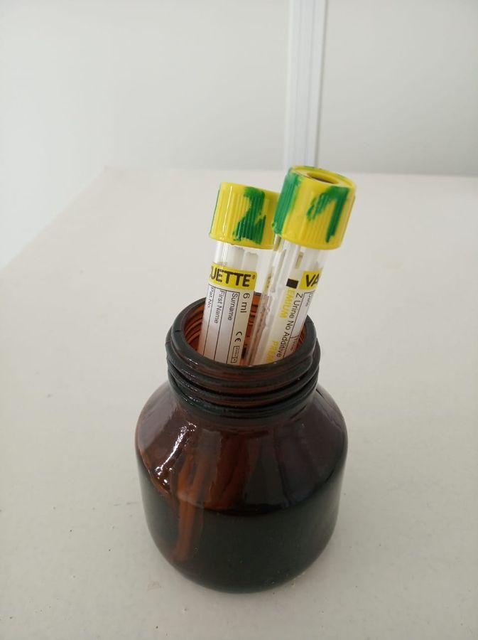 Пробирки с зондами маркируются и отправляются в лабораторию